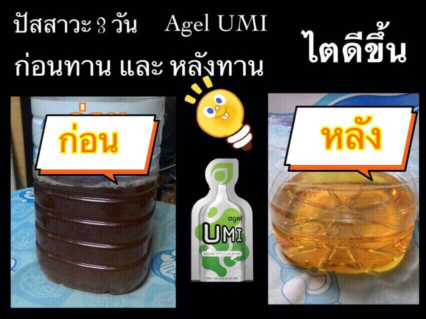 Urine Before-After